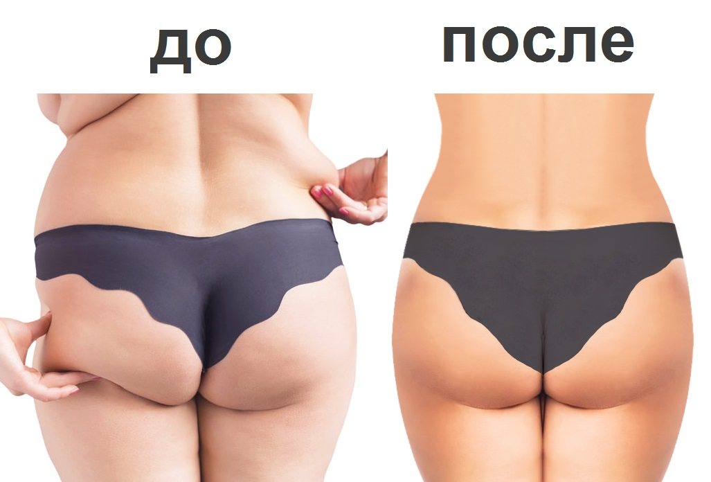 Стройное тело – это здорово! Избавление от лишнего жира навсегда за 1 сеанс!