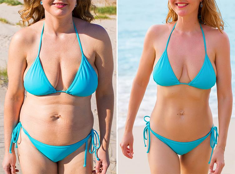 Стесняетесь своей фигуры на пляже? Избавтьесь от лишнего жира за 1 день!