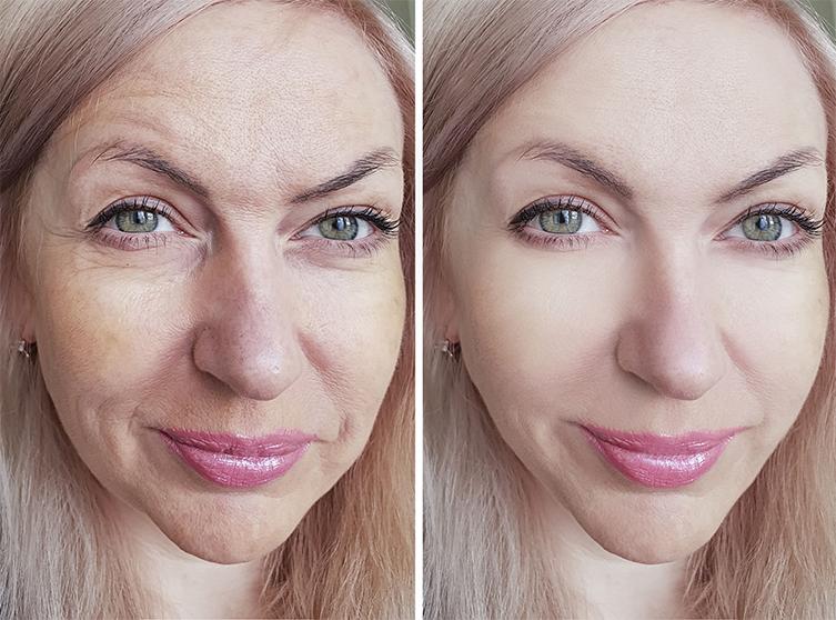 Доказано: процедура Embrace подтягивает кожу и омолаживает ее на долгий срок!