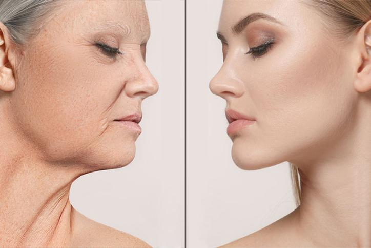 Embrace: альтернатива пластики по омоложению и подтяжке кожи – летняя акция!