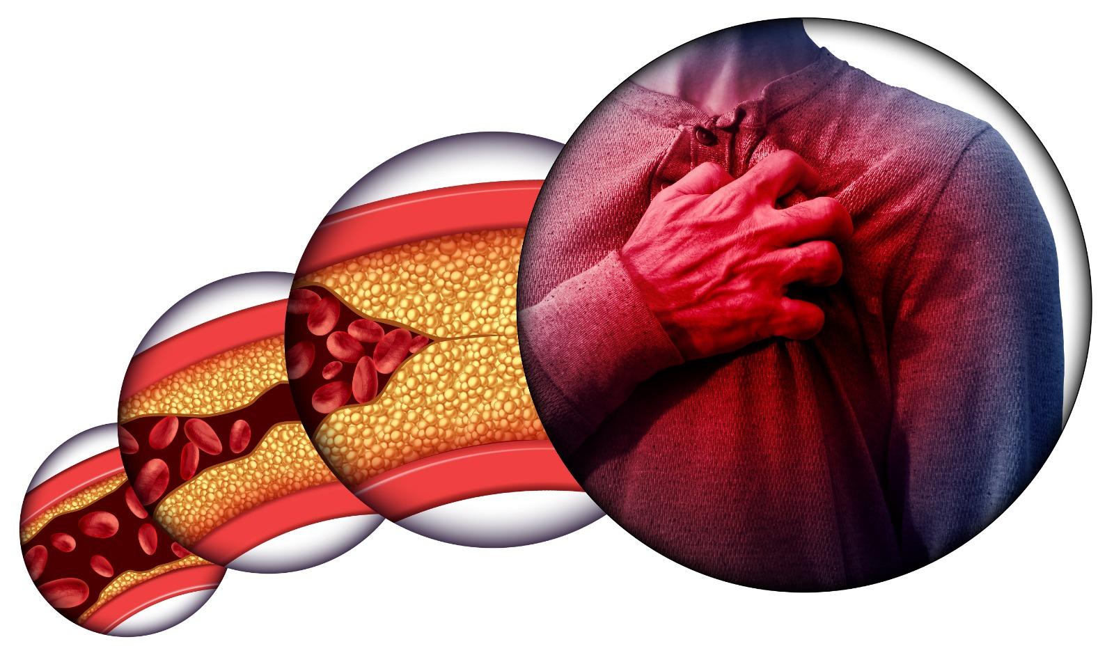 Не принимайте холестерин близко к сердцу