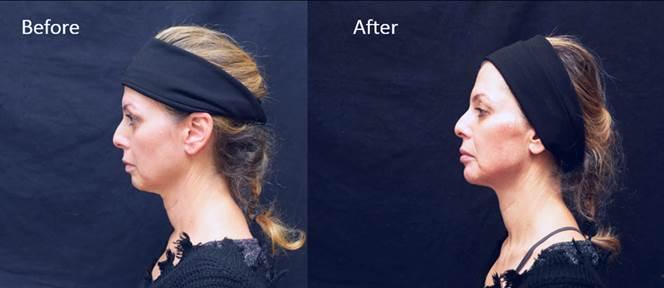 Прорыв в эстетической коррекции подбородка и челюсти